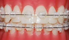clear-braces-ortho-technology-pure
