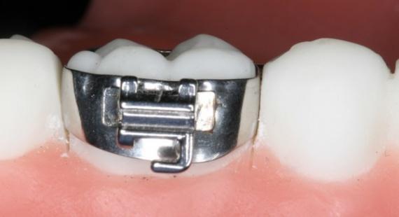 Ортодонтичні кільця — елемент сучасної брекет-системи. Ортодонтичне кільце  виготовляється з металу і виглядає як ободок. Встановлюються кільця на  задні зуби ... 4111065d1b8f3