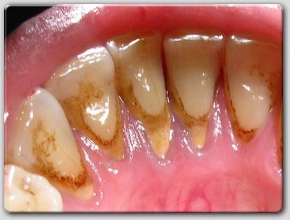 Щоб не допустити утворення зубного каменю необхідно регулярно і правильно  чистити зуби – ретельно вичищайте як зовнішню 57a9e9abd7fbf