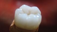 Проблеми із міцністю зубів, невже відпала емаль?!