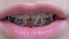 Еластичні кільця на фронтальні зуби!